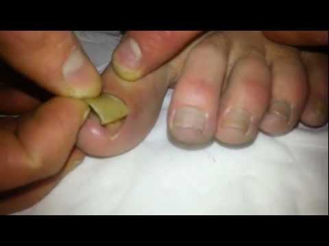 Removal of Dead toenail!!!