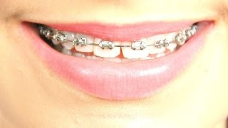All About My Teeth/Braces/Expander | LotsOfZebras