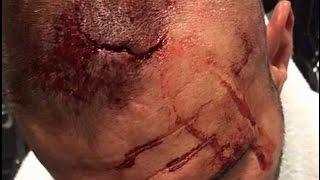 RANDY ORTON PULLED FROM WWE BACKLASH BROCK LESNAR INJURY!!! VS BRAY WYATT CANCELLED!