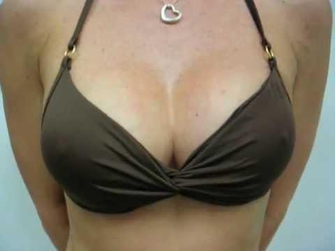 breast augmentation,breast enhancement,breast enlargement,how to get bigger breasts,breast implants