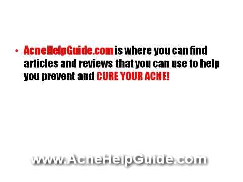 Acne No More Review   Acne No More Reviews