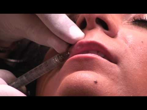 Juvederm Lip Injection Procedure Euro Med Spa with Before and After