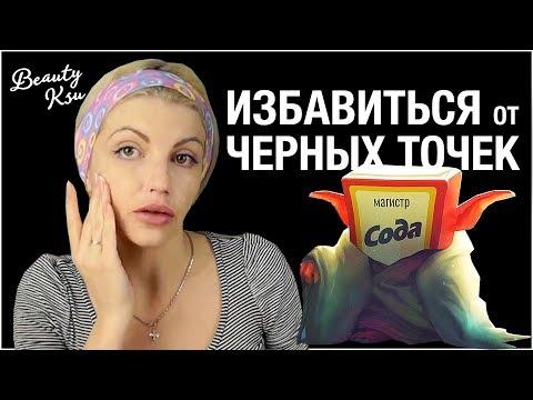 Как избавить от черных точек на лице содой и перекисью водорода
