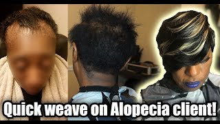 HOW TO QUICK WEAVE ON A CLIENT WITH ALOPECIA