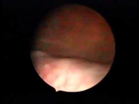 VAGINOSCOPY CYSTOSCOPY vault recurrence ca endometrium thumbnail