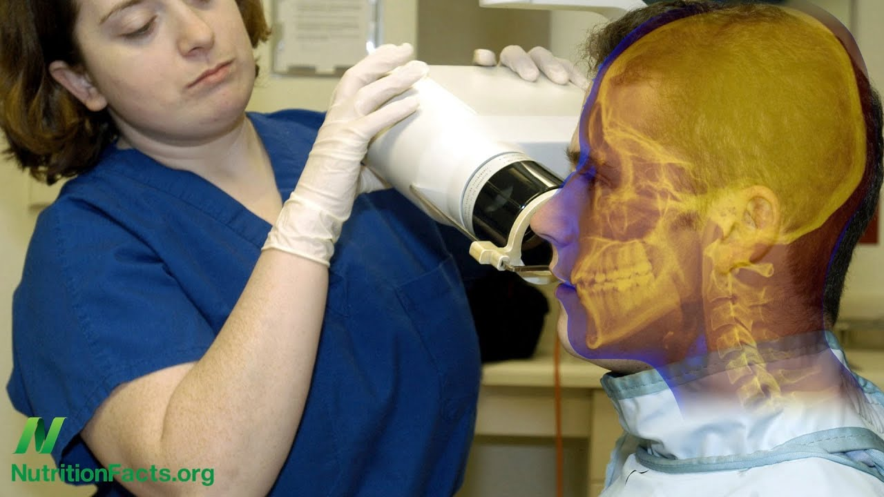 Do Dental X-Rays Cause Brain Tumors?