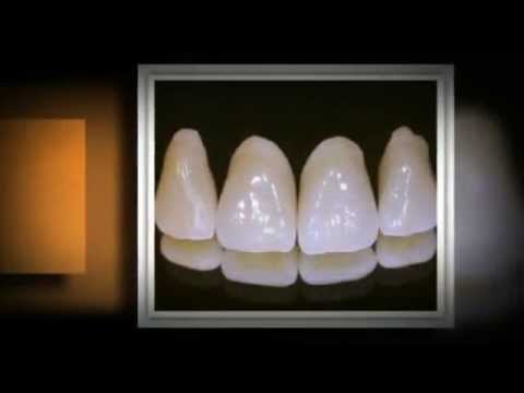 Types of Dental Crowns