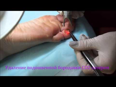 Подошвенная бородавка - лечение лазером