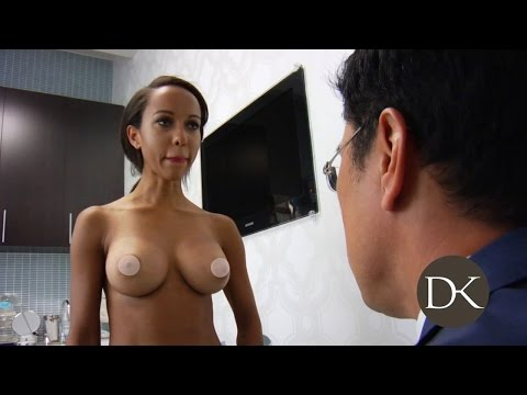 Breast Augmentation Trans-umbilical Approach