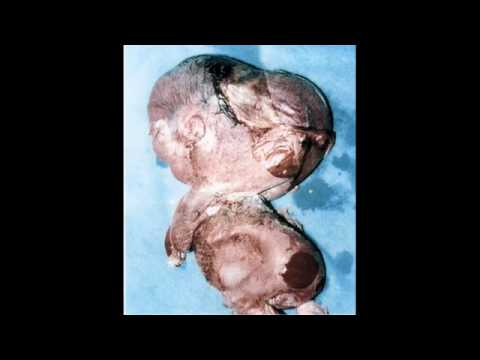 Depleted Uranium - A Weapon of Mass Destruction