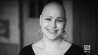 Deeann Graham speaks about living with Alopecia Areata