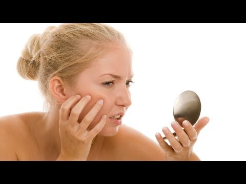 How to Cover a Pimple with Makeup | Acne Treatment
