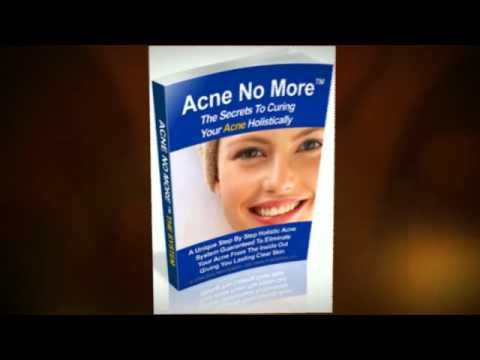 Proactive Acne Cure Solution