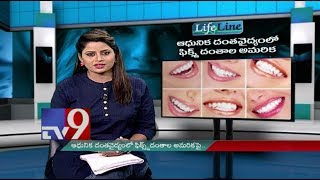 Dental implants || Modern treatment || Lifeline