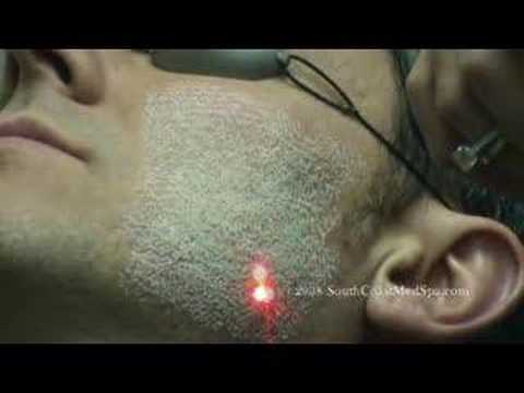 Laser Skin Resurfacing for Acne Scar Removal