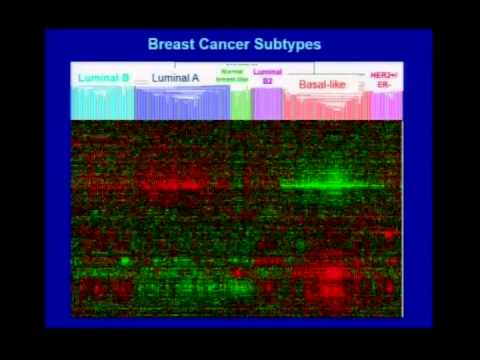 Molecular Genetics of Breast Cancer   Dr  Lisa Carey   2014 MBCN Conference
