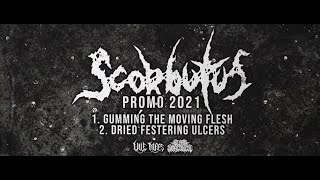SCORBUTUS - PROMO 2021 [OFFICIAL STREAM] SW EXCLUSIVE