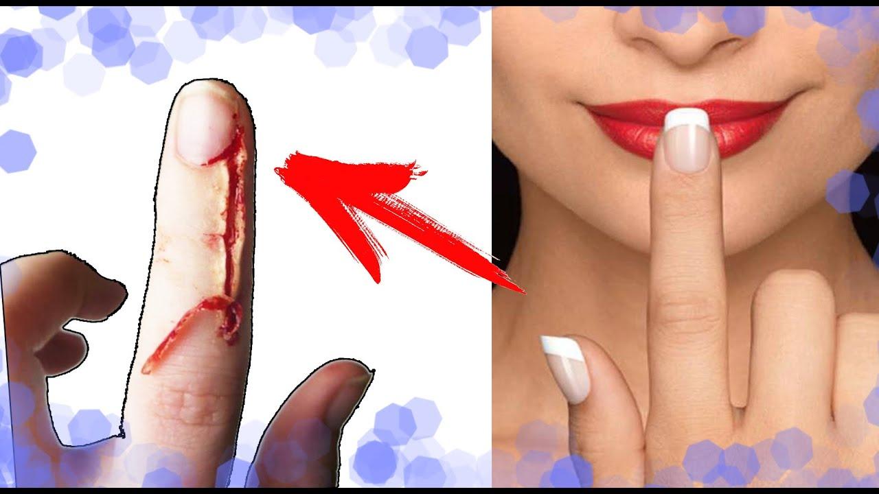 Как убрать заусенец на пальцах в домашних условиях 976