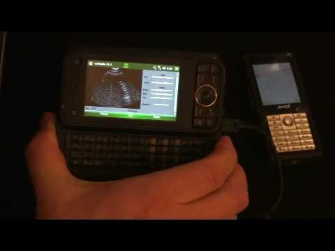 CellPhoneUltrasound Demo