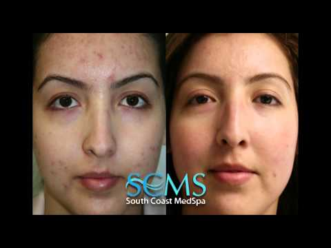 Laser Acne Scar Removal- Before/After Female, Olive Skin