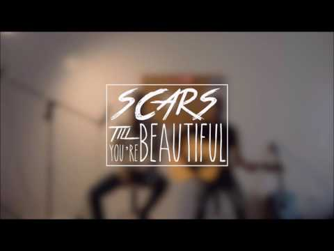 Alessia Cara - Scars to Your Beautiful (mp3 download)