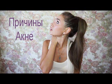 Все о Прыщах / Причины Появления Акне
