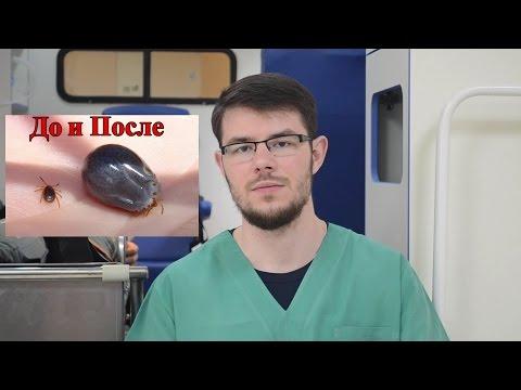 0 - Перша допомога при укусі кліщів