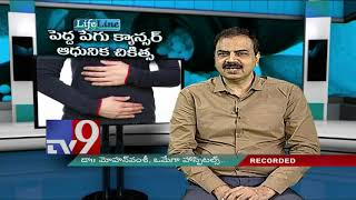 Colorectal cancer || Modern treatment || Lifeline