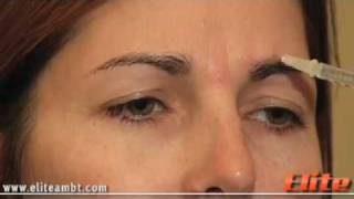Botox - Demo Injection | Private Botox Training | Elite AMBT