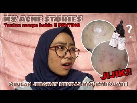 MY ACNE STORIES, 2 BULAN JERAWAT HEMPAS GAK BALIK LAGI !