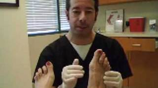 Bunions by Dr. Leo Krawetz of Tampa and Brooksville Florida