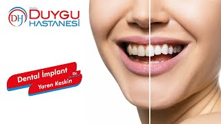 Dental İmplant - Dr. Yaren Keskin