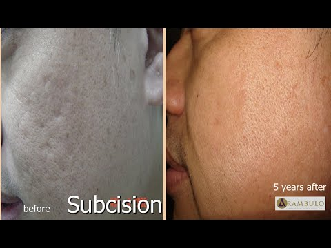 Subcision of acne scars,Philippines and Asia .wmv