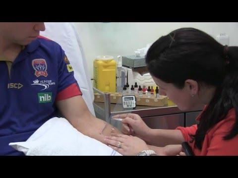 Skin Prick Test Allergy Test - John Hunter Children39s Hospital