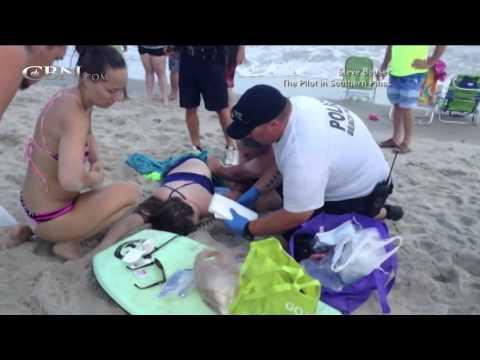 Shark Attacks Spook NC Beach Tourists