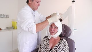 EERSTE NACONTROLE FACELIFT DIANA ► DIANA GABRIELS