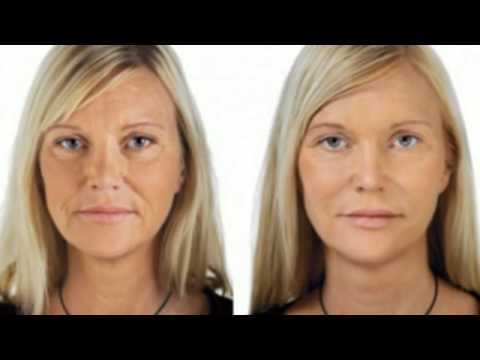 phytoceramides bearberry extract for skin reviews