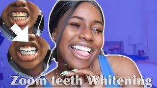 Zoom Teeth Whitening (Is it worth it?) | Alexis Hill