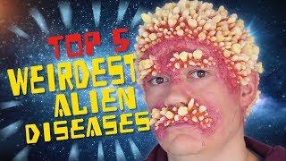 Top 5 Weirdest Alien Diseases