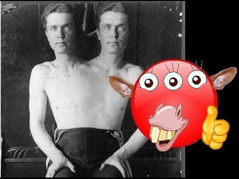 Жуткие цирковые актеры уроды, с отклонениями, патологиями и дефектами, старые фото