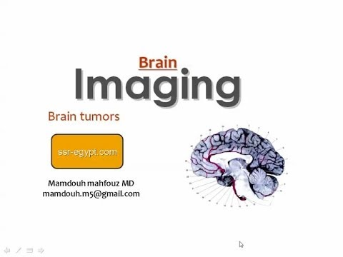 Imaging of Brain tumors - Dr Mamdouh Mahfouz (In Arabic)