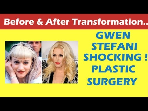 Gwen Stefani Plastic Surgery Before and After Full HD