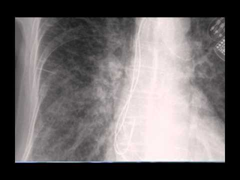Chest x-ray -- Difference between Kerley B lines and blood vessels