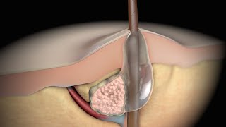 Acne | Nucleus Health