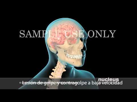 Lesión cerebral traumática leve