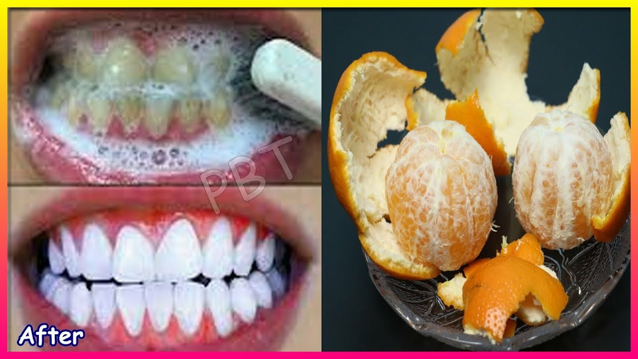 Ethiopia Teeth whitening Tips and Remedy