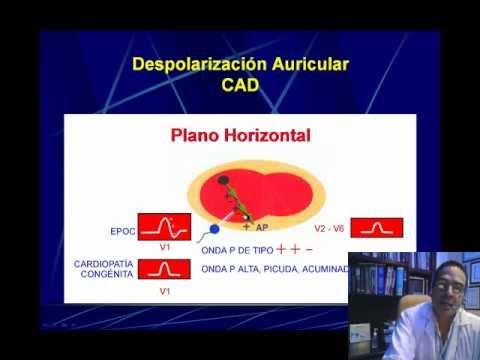 ELECTROCARDIOGRAFIA CURSO TALLER 6  BLOQUEOS AV Y CRECIMIENTOS AURICULARES.wmv