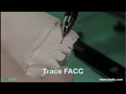 FAQFix - Indirect Technique - Step 1 - Trace FACC