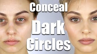 How To Conceal Dark Circles Under Eyes   Alexandra Anele