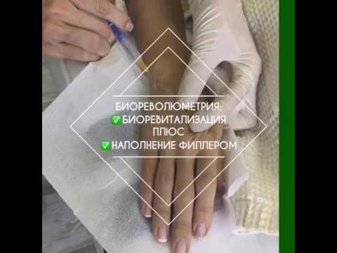 Наполнение кожи рук. Dr.Shinder